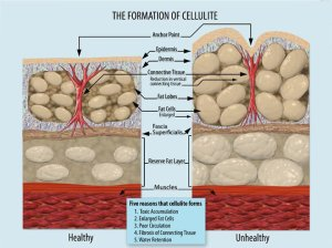 Cellulite structure – click for a close-up! Courtesy of WikiCommons